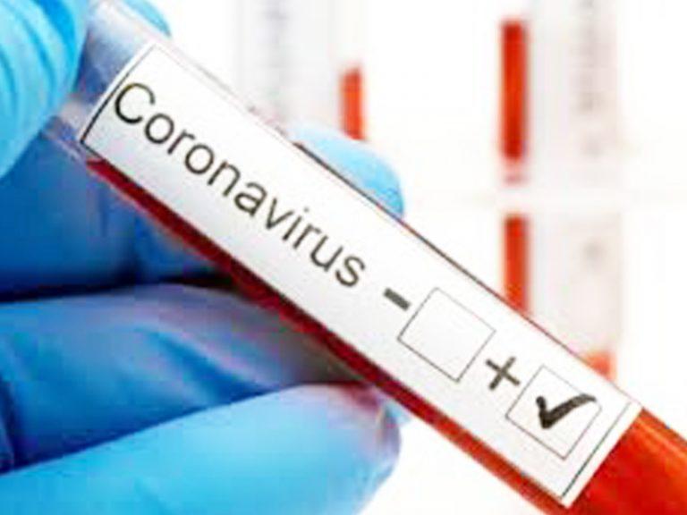 AP crosses 4 lac mark in COVID 19 testings